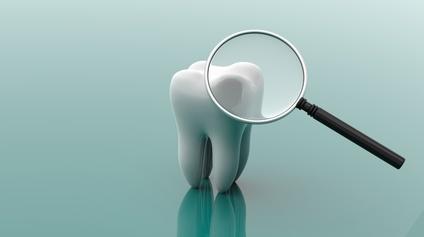 歯科イメージ・デンタルミラー